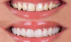 faccette dentista
