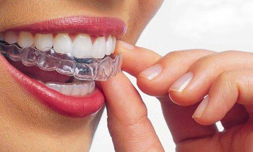 Ortodonzia classica e Invisalign