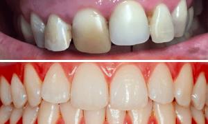 parodontologia oral beauty