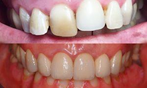 zirconio oral beauty